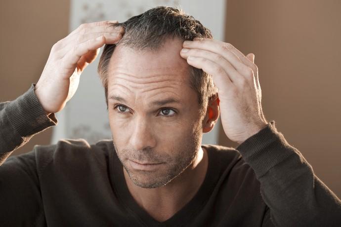 transplante capilar curitiba stress queda de cabelo