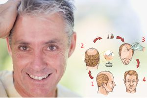 transplante capilar indicações curitiba
