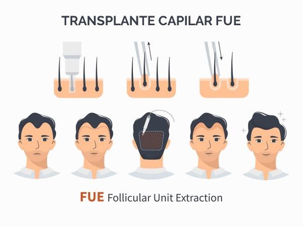 transplante capilar fue curitiba