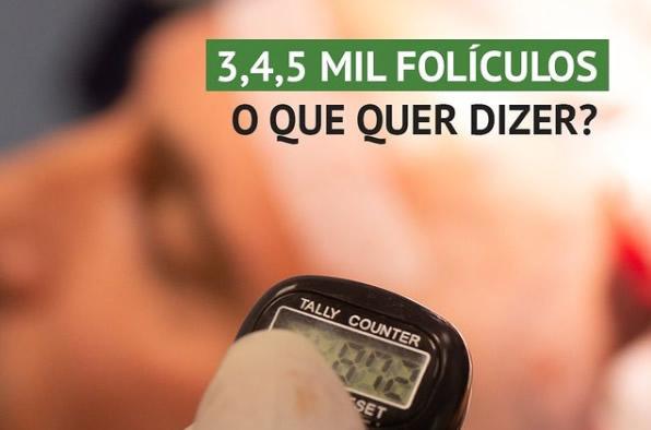 quantidade de foliculos transplantados