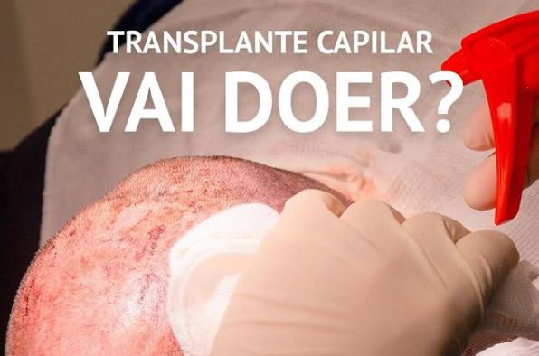 transplante capilar vai doer
